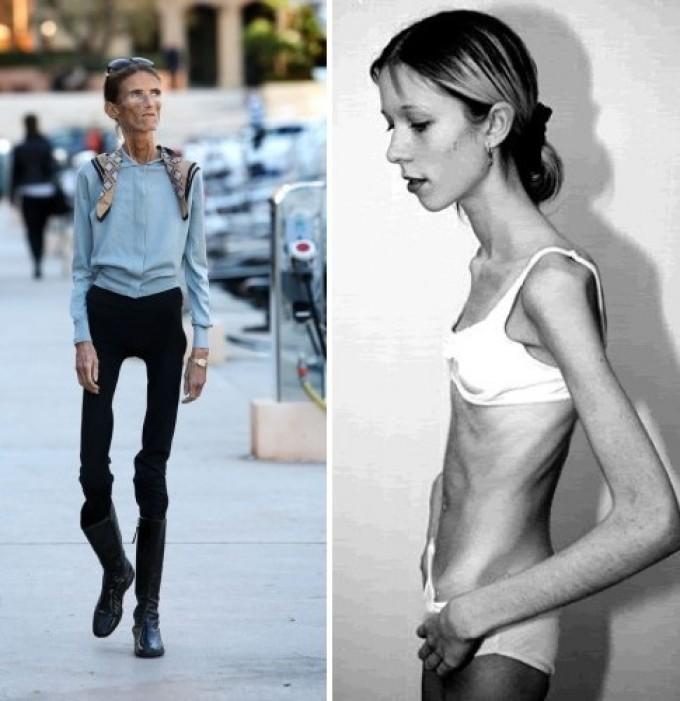 Смотреть фото моделей анорексичек #7